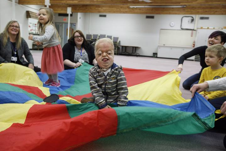 Alberta boy born with rare illness no big deal for classmates: 'Are we going to play?'