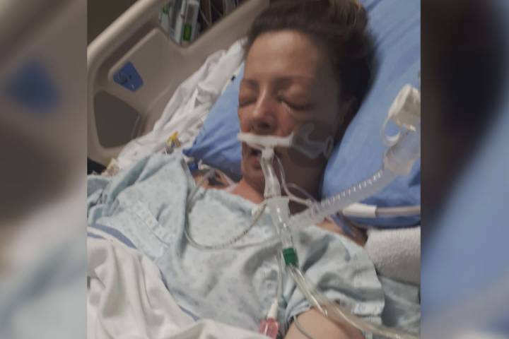 Calgary mother shares survival story after the flu forced her into a coma