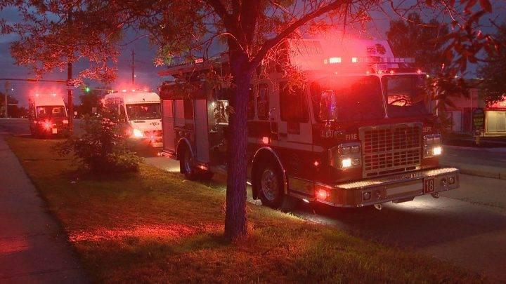 Man burns 70% of body in Calgary backyard fire incident