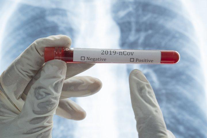 Coronavirus: How Alberta Health defines a 'recovered' case