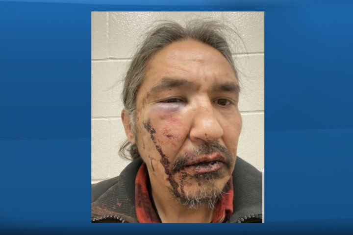 Northern Alberta First Nations chief alleges he was beaten by RCMP