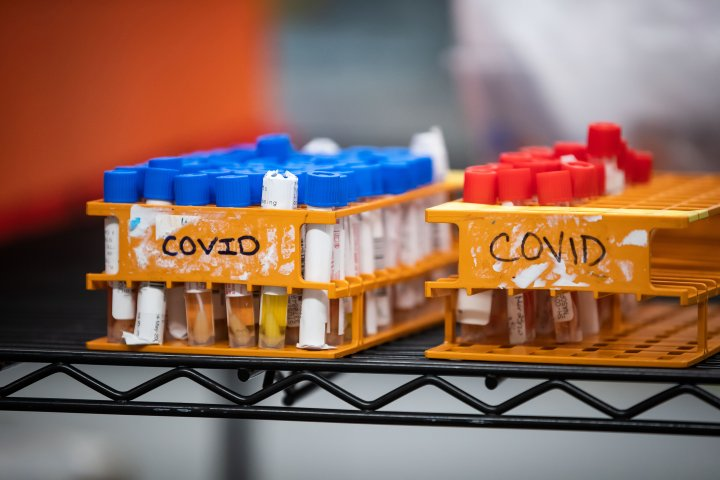 Alberta confirms 57 new cases of COVID-19 on Friday