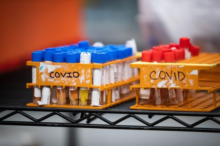 Possible coronavirus transmission at 4 Lloydminster locations: SHA