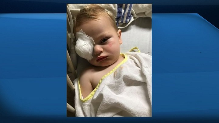 Alberta mom suspects eye cancer in son after reading about it days before, leading to early diagnosis