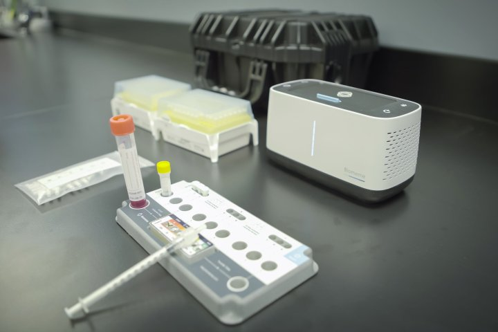 Private, rapid COVID-19 testing available in Edmonton