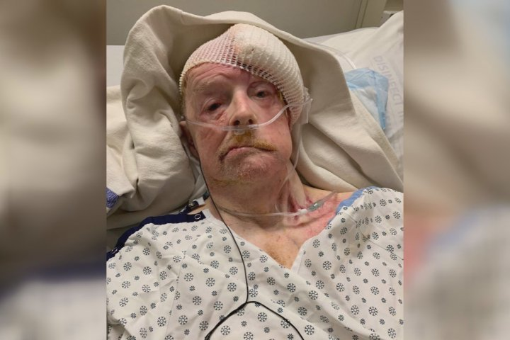 Edmonton man's surgery cancelled moments before it was set to begin
