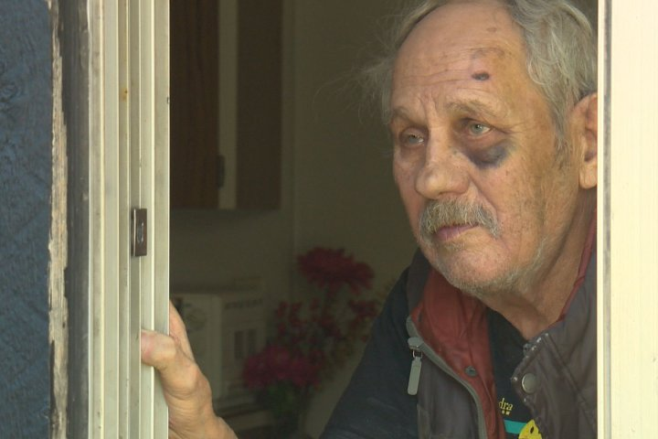 Edmonton seniors attacked in string of home invasions