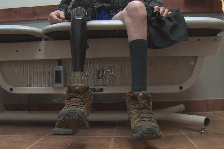 Alberta man walks in new prosthetic leg thanks to outpouring of community support